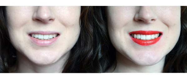 оттенок цвета зубов